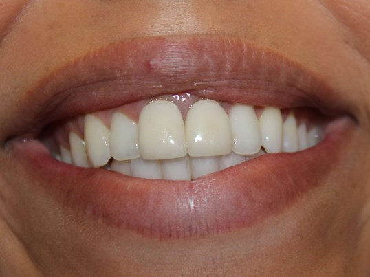 Vanessa Anterior Crowns Before