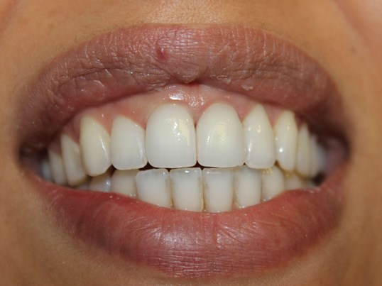 Vanessa Anterior Crowns After