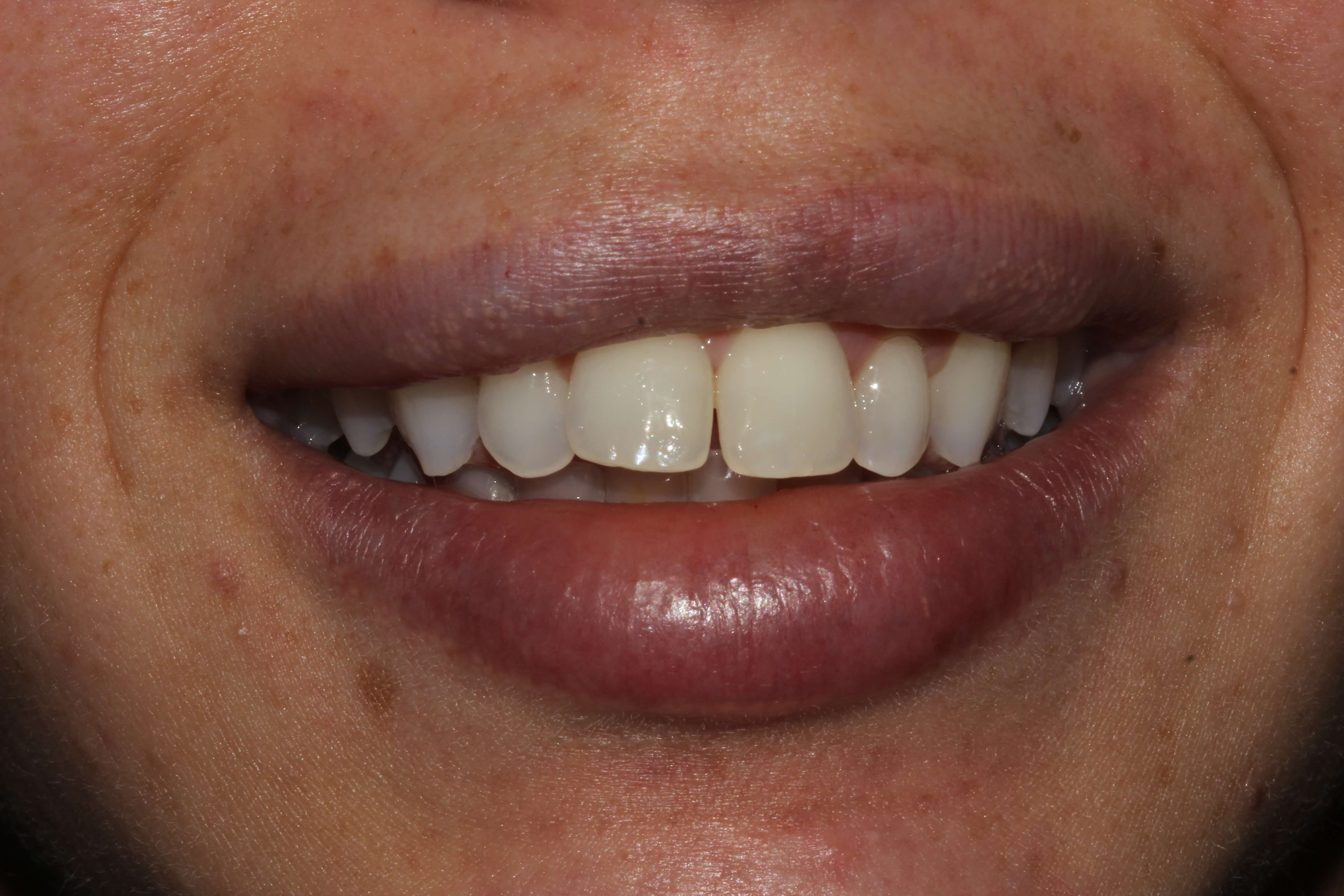 Invisalign - Open bite Before