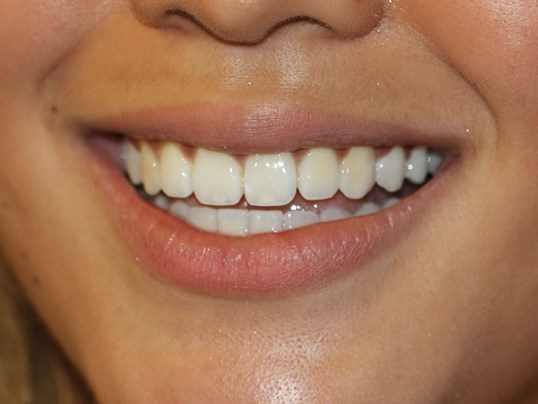 Invisalign fixes narrow arch After