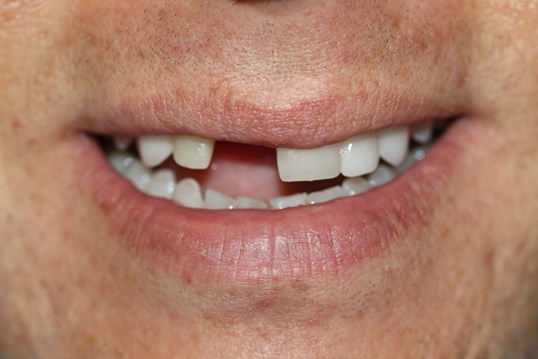 Before And After Dental Implants Nitrous Oxide Sedation Dental Crowns Tooth Extraction Bone Grafting Photos